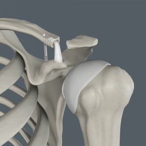 Acromioclavicular (AC) Joint